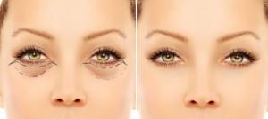 Eye Lid Surgery Blepharoplasty Richmond Charlottesville Short Pump VA